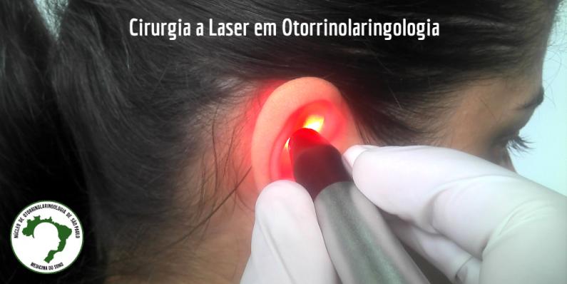 Cirurgia a Laser em Otorrinolaringologia