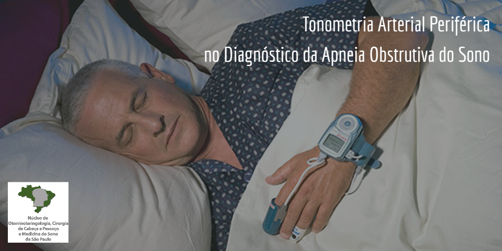 tonometria-arterial