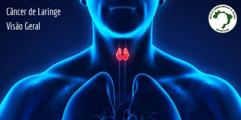 cancer-de-laringe